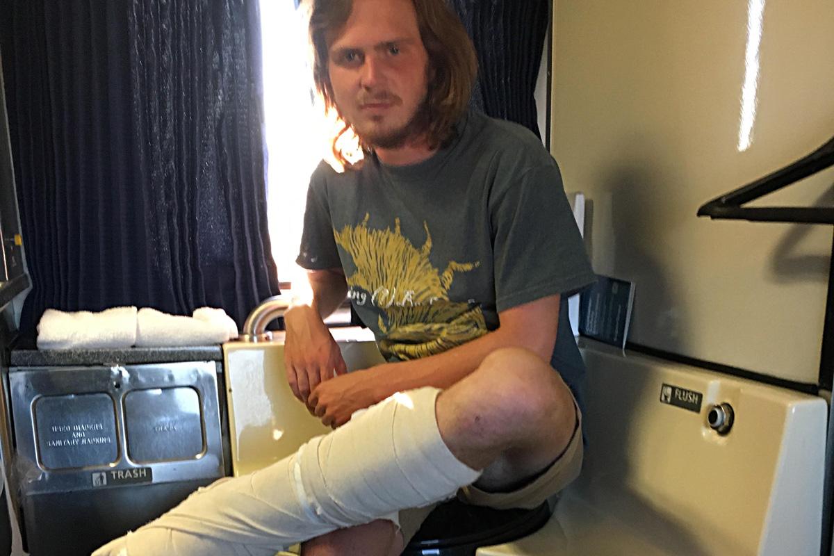 Ben Bonkoske after jumping off 4-story building